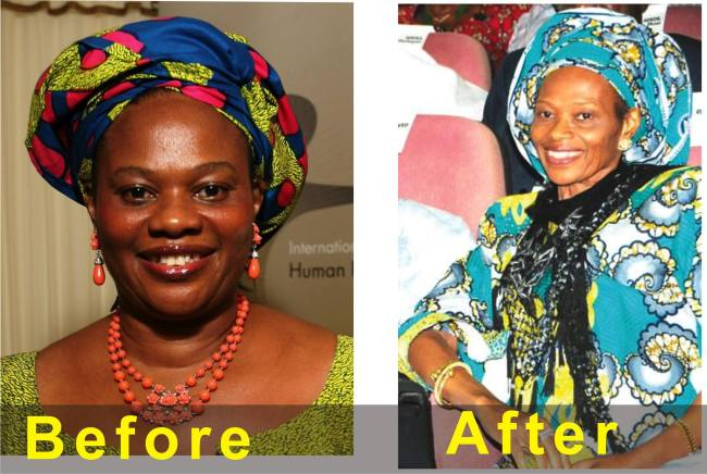 DORA AKUNYILI: SICK BEYOND RECOGNITION...PICTURES AND HER OFFICIAL STATEMENT